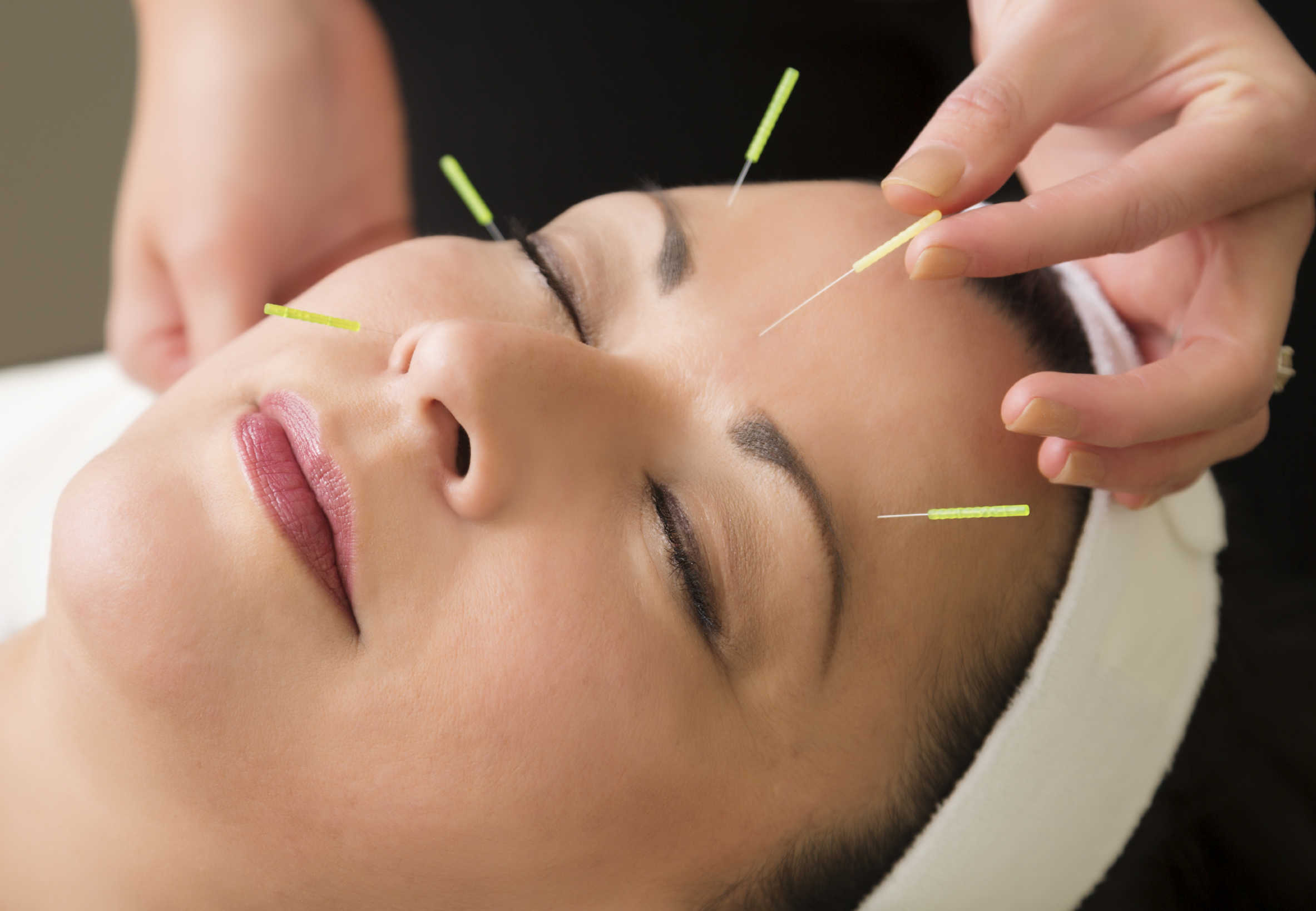 Acupuncture & well-being